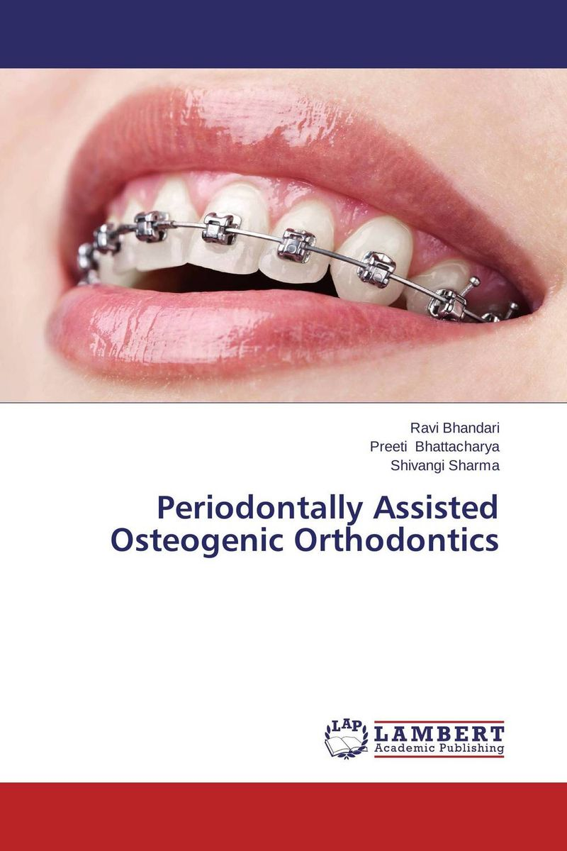 Periodontally Assisted Osteogenic Orthodontics ragini suri naso alveolar molding an orthodontic perspective