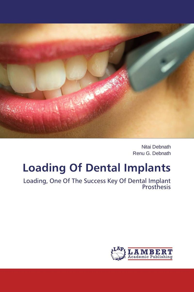 Loading Of Dental Implants топ sevim linse