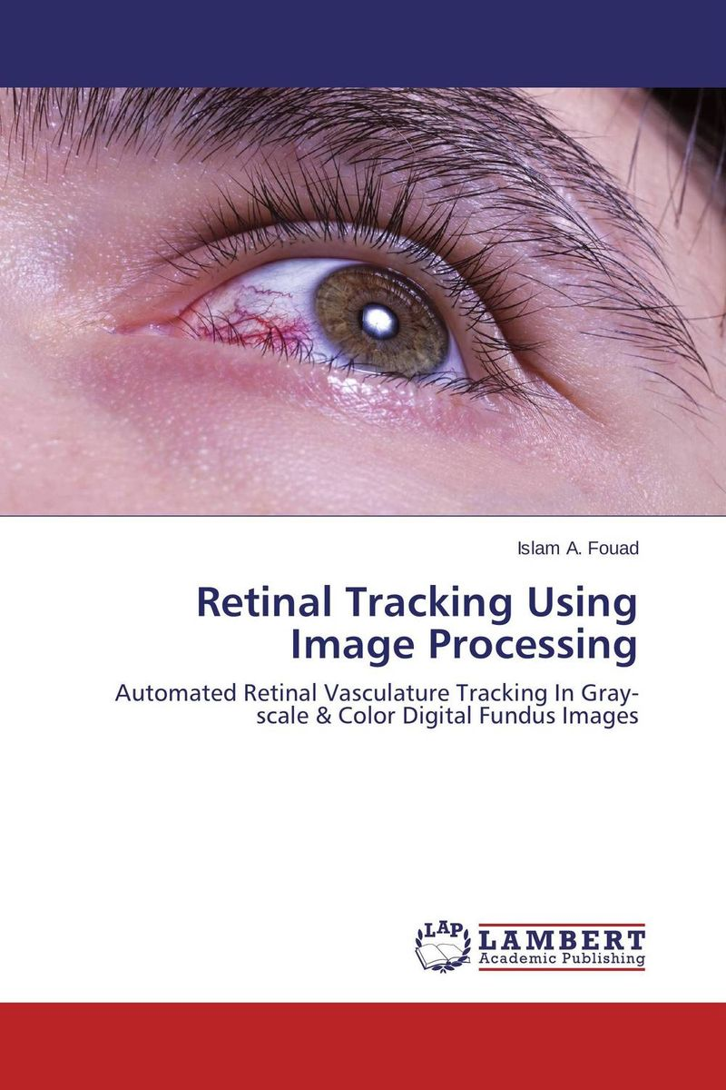 Retinal Tracking Using Image Processing ilaria piano and claudia gargini antiapoptotic strategies in retinal degeneration