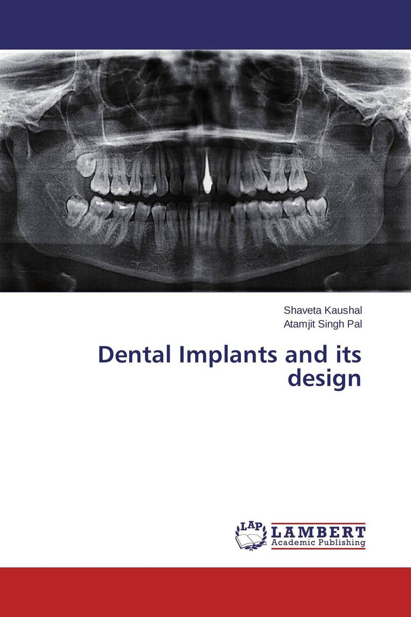 Dental Implants and its design simranjeet kaur amaninder singh and pranav gupta surface properties of dental materials under simulated tooth wear