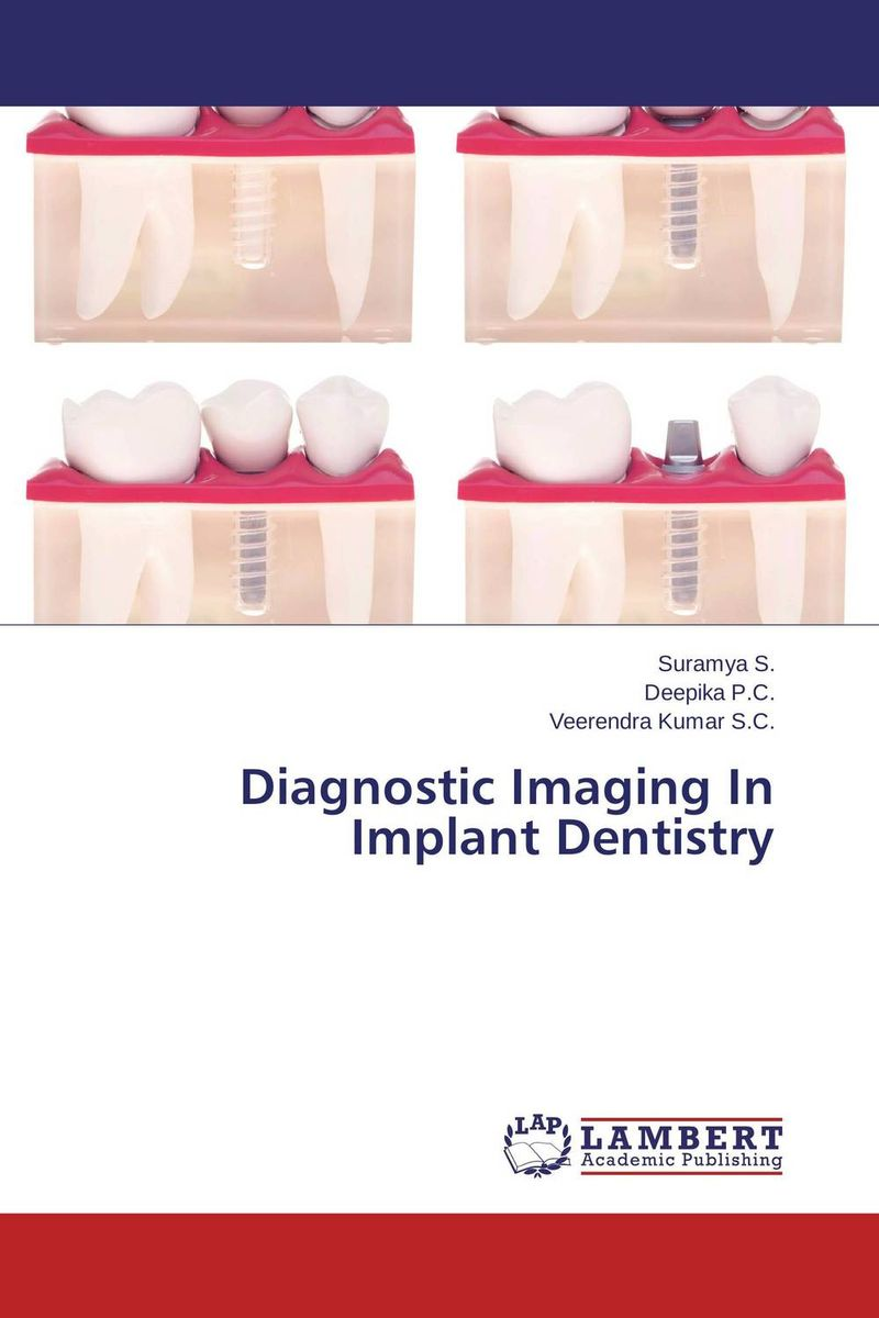 Diagnostic Imaging In Implant Dentistry atamjit singh pal paramjit kaur khinda and amarjit singh gill diagnostic aspects and treatment planning in implants