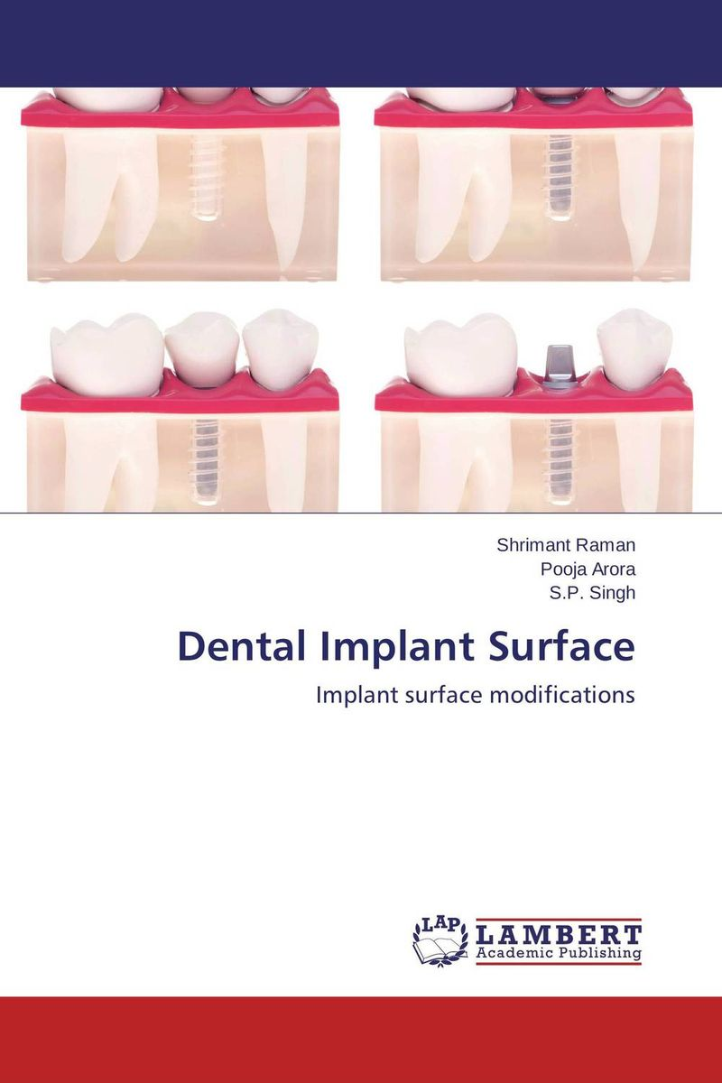 Dental Implant Surface attachments retaining implant overdentures