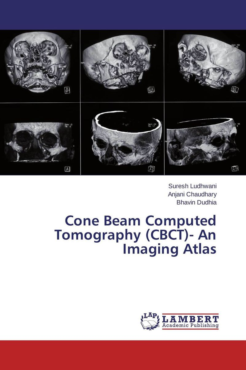 Cone Beam Computed Tomography (CBCT)- An Imaging Atlas image receptors in radiology