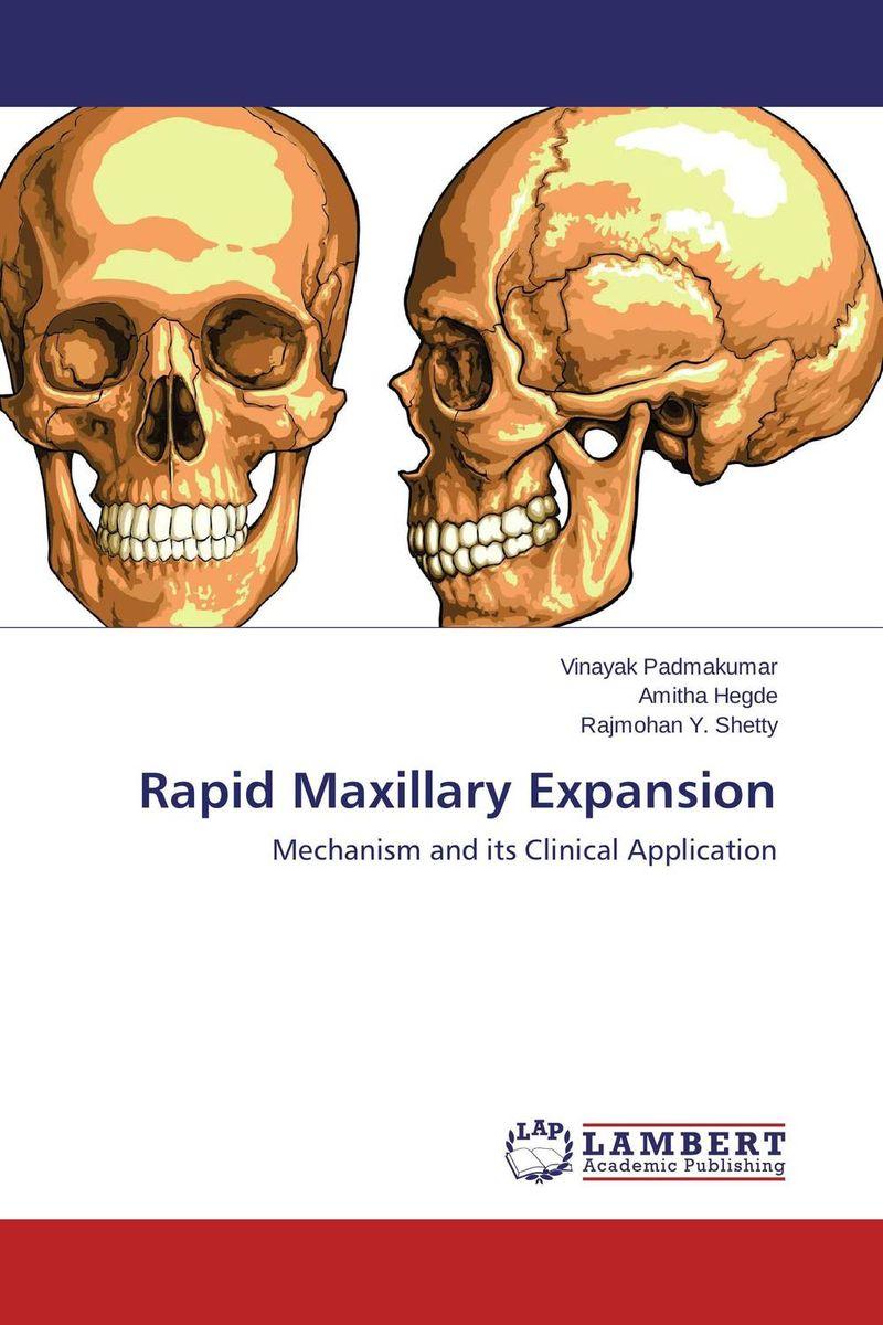 Rapid Maxillary Expansion fernaz mohd sadiq behlim m n kuttappa and u s krishna nayak maxillary protraction in class iii cases