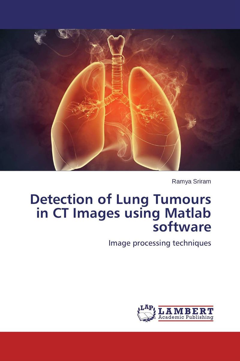 Detection of Lung Tumours in CT Images using Matlab software analysis of tp53 and promoter hypermethylation of mgmt in lung cancer