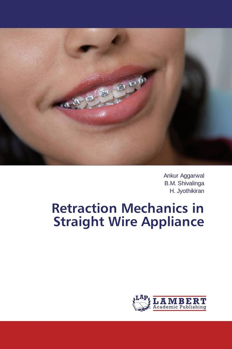 Retraction Mechanics in Straight Wire Appliance ragini suri naso alveolar molding an orthodontic perspective
