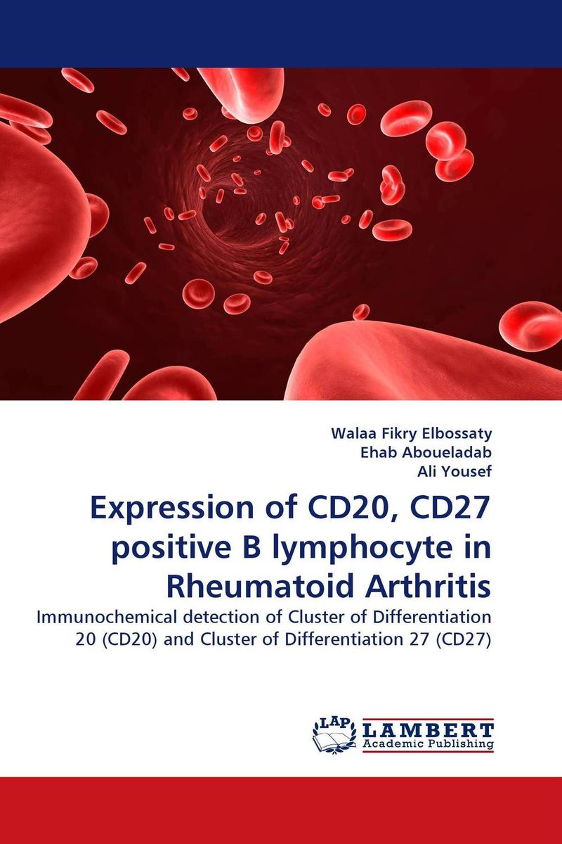 Expression of CD20, CD27 positive B lymphocyte in Rheumatoid Arthritis new techniques for early diagnosis of rheumatoid arthritis