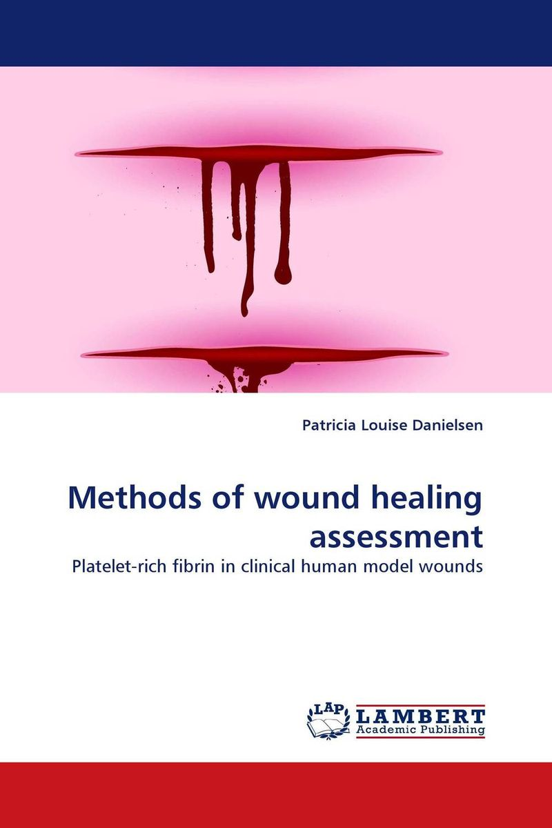 Methods of wound healing assessment belousov a security features of banknotes and other documents methods of authentication manual денежные билеты бланки ценных бумаг и документов
