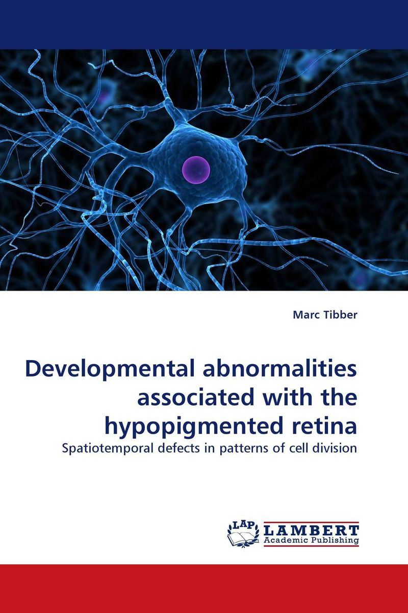 Developmental abnormalities associated with the hypopigmented retina