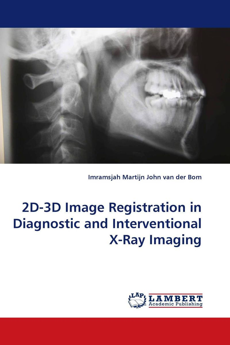 2D-3D Image Registration in Diagnostic and Interventional X-Ray Imaging treelogic era 3d 3d конвертер где