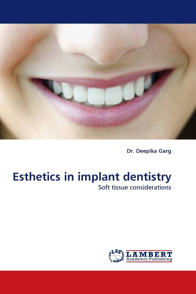 Esthetics in implant dentistry esthetics in implant dentistry
