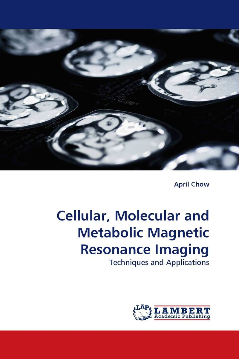 Cellular, Molecular and Metabolic Magnetic Resonance Imaging atamjit singh pal paramjit kaur khinda and amarjit singh gill local drug delivery from concept to clinical applications