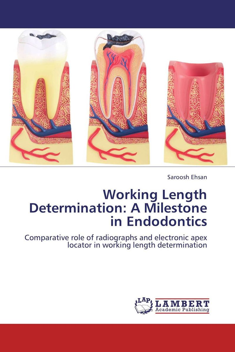 Working Length Determination: A Milestone in Endodontics edge finder in order to accurately determine the location of the center of a detection tool workpiece touch point sensor for cnc