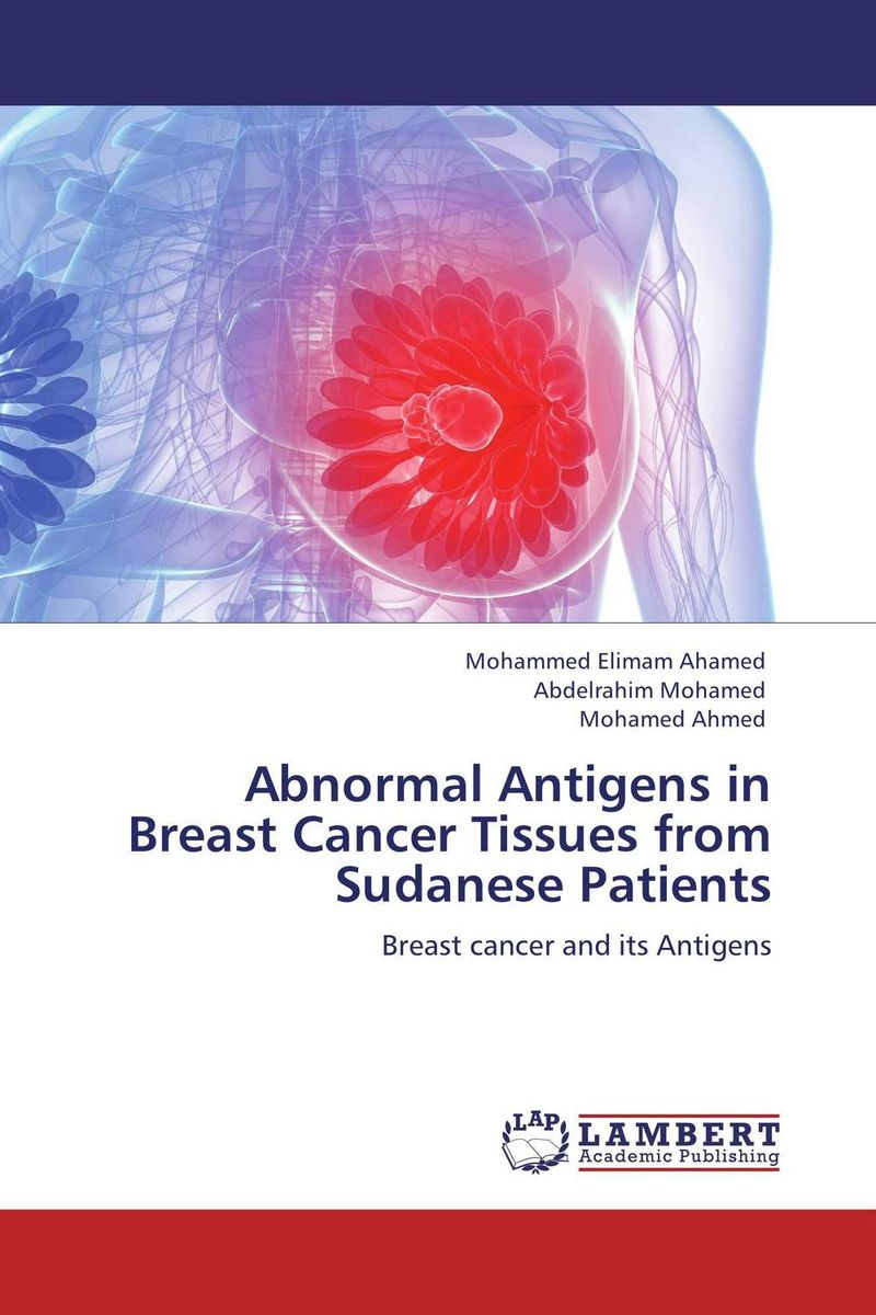 Abnormal Antigens in Breast Cancer Tissues from Sudanese Patients choices in breast cancer treatment – medical specialists and cancer survivors tell you what you need to know