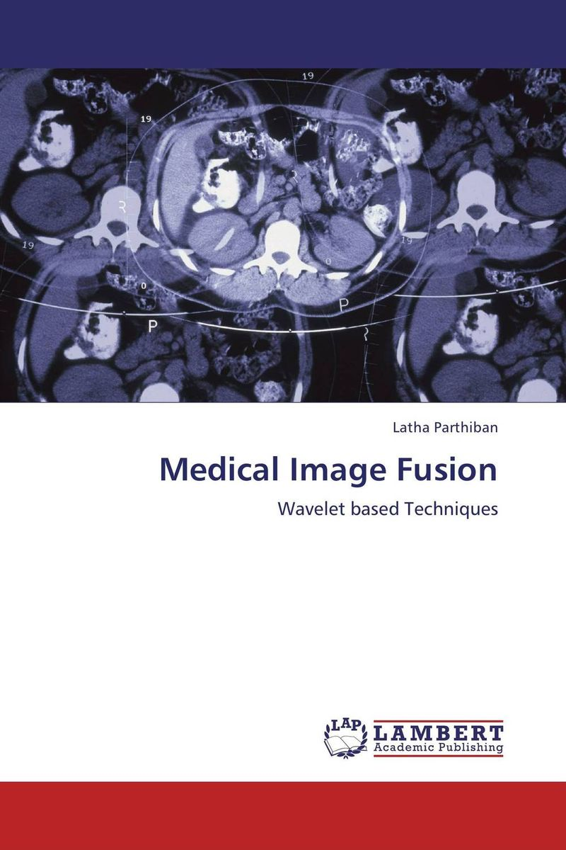 Medical Image Fusion fusion and revision of uncertain information from multiple sources