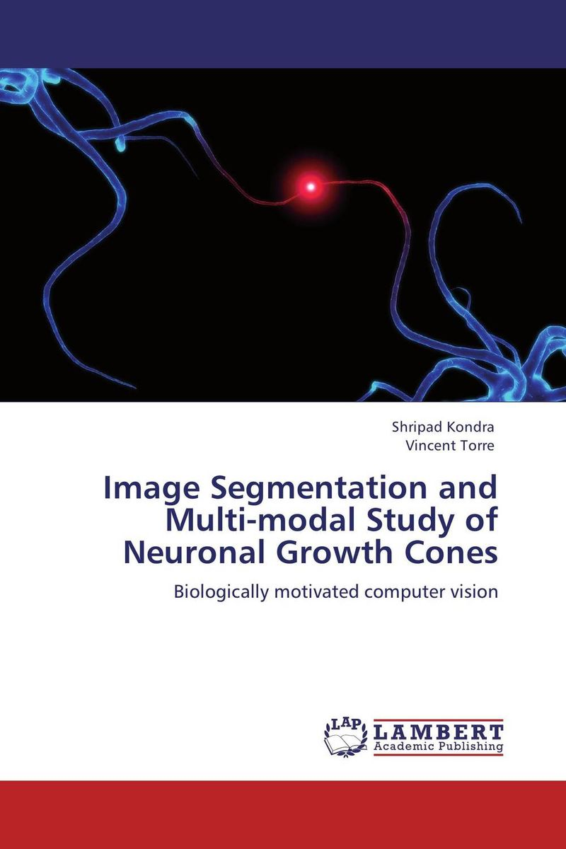 купить Image Segmentation and Multi-modal Study of Neuronal Growth Cones недорого