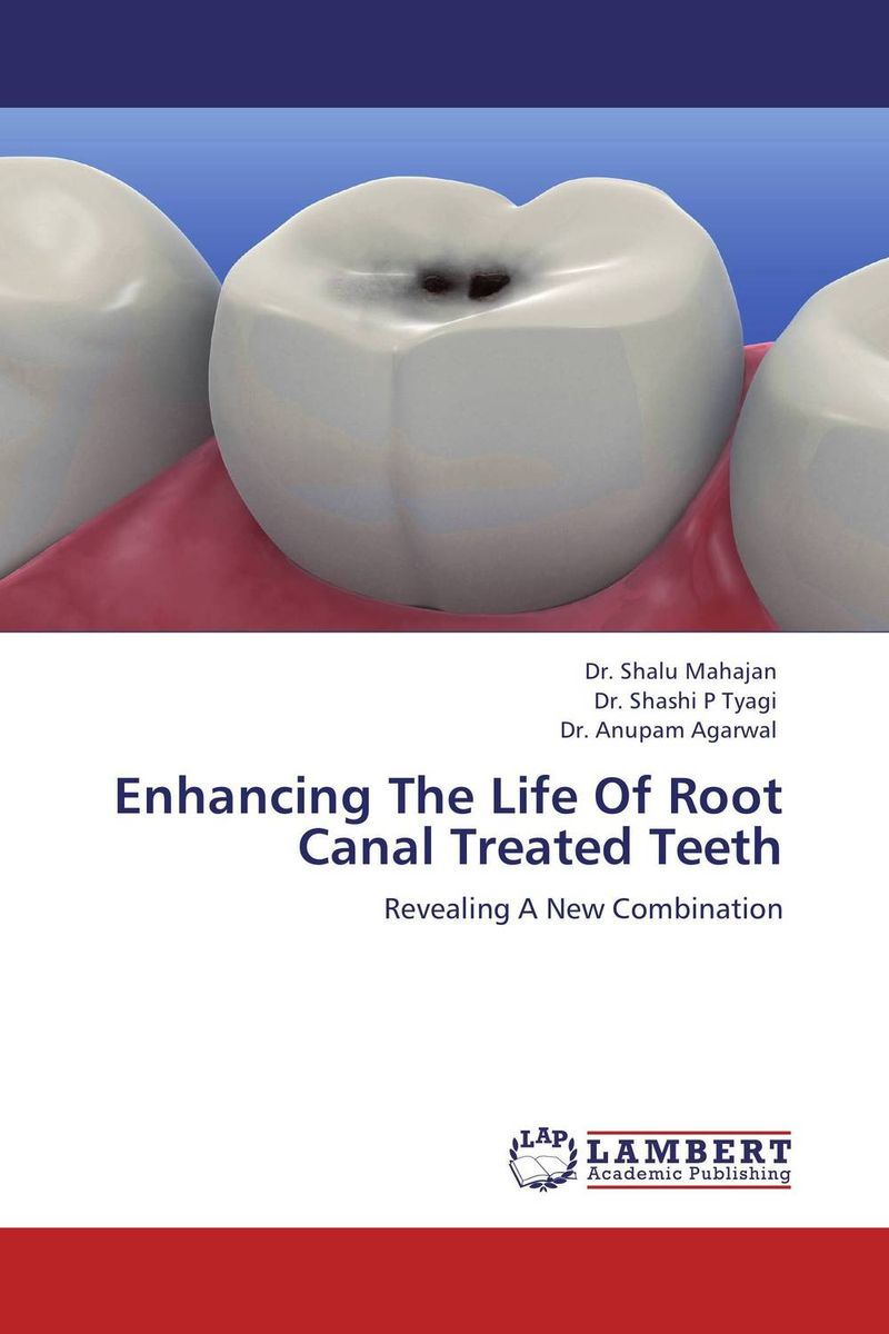 Enhancing The Life Of Root Canal Treated Teeth i d rather have a root canal than do cold calling