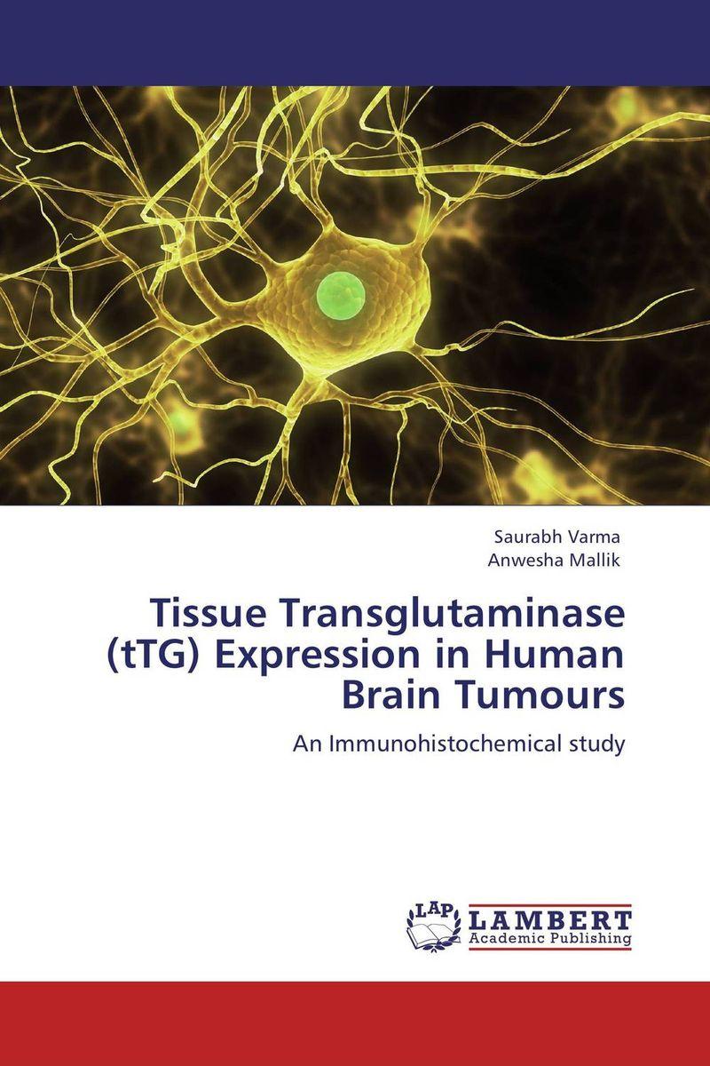 Tissue Transglutaminase (tTG) Expression in Human Brain Tumours amburanjan santra rakesh kumar and c s bal evaluation of brain tumor recurrence role of pet spect mr