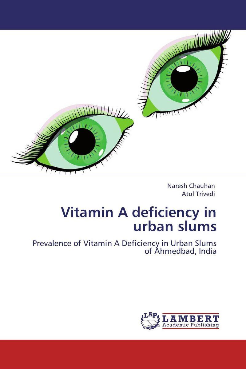 Vitamin A deficiency in urban slums found in brooklyn