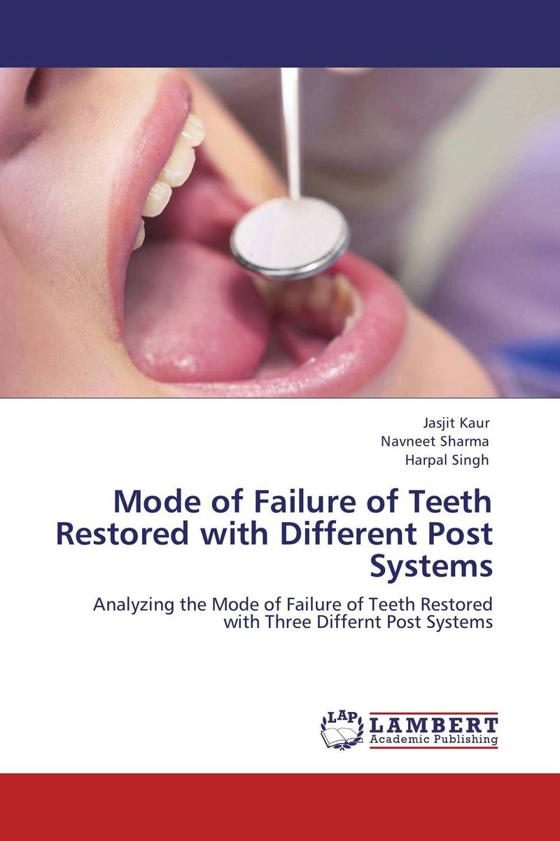 купить  Mode of Failure of Teeth Restored with Different Post Systems  онлайн