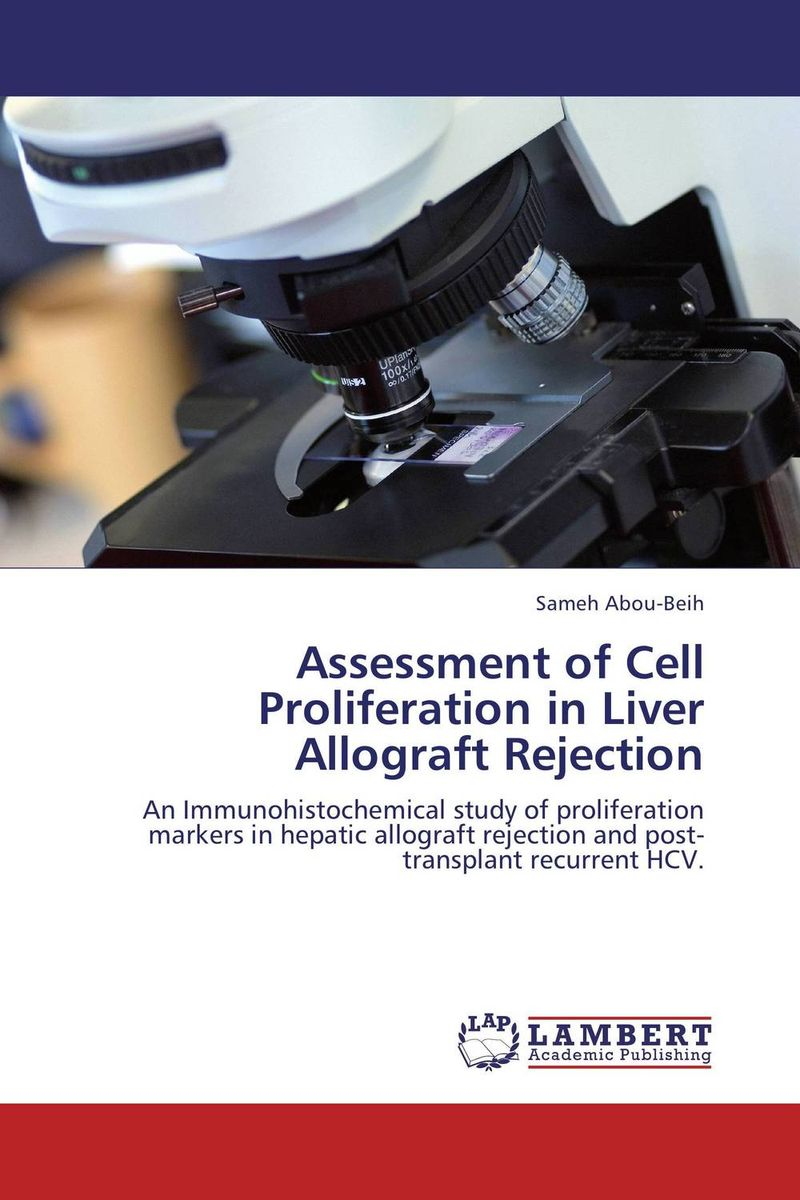 Assessment of Cell Proliferation in Liver Allograft Rejection vrunda shah and vipul shah herbal therapy for liver disease