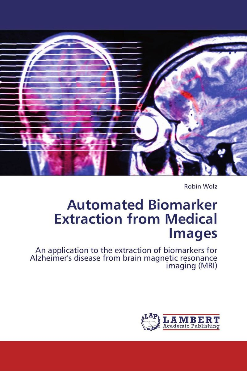 Automated Biomarker Extraction from Medical Images user preference extraction from brain signals