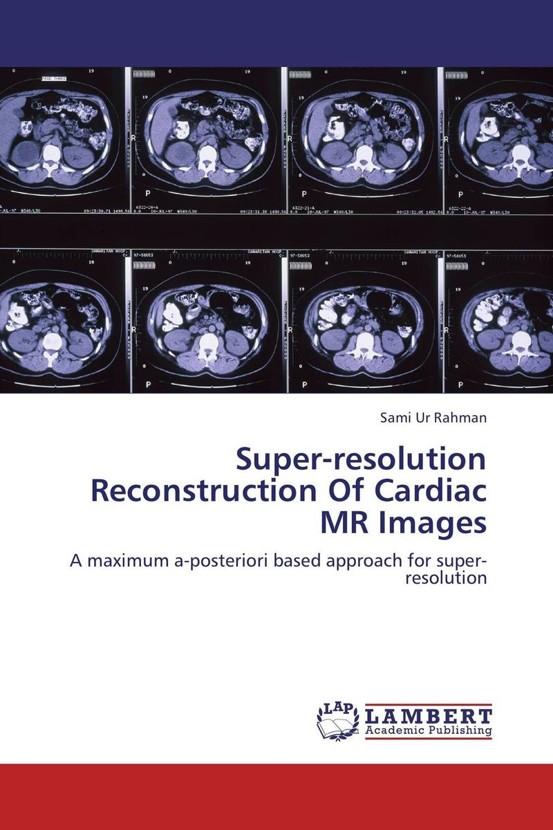 Super-resolution Reconstruction Of Cardiac MR Images stereo imaging for 3d scene reconstruction