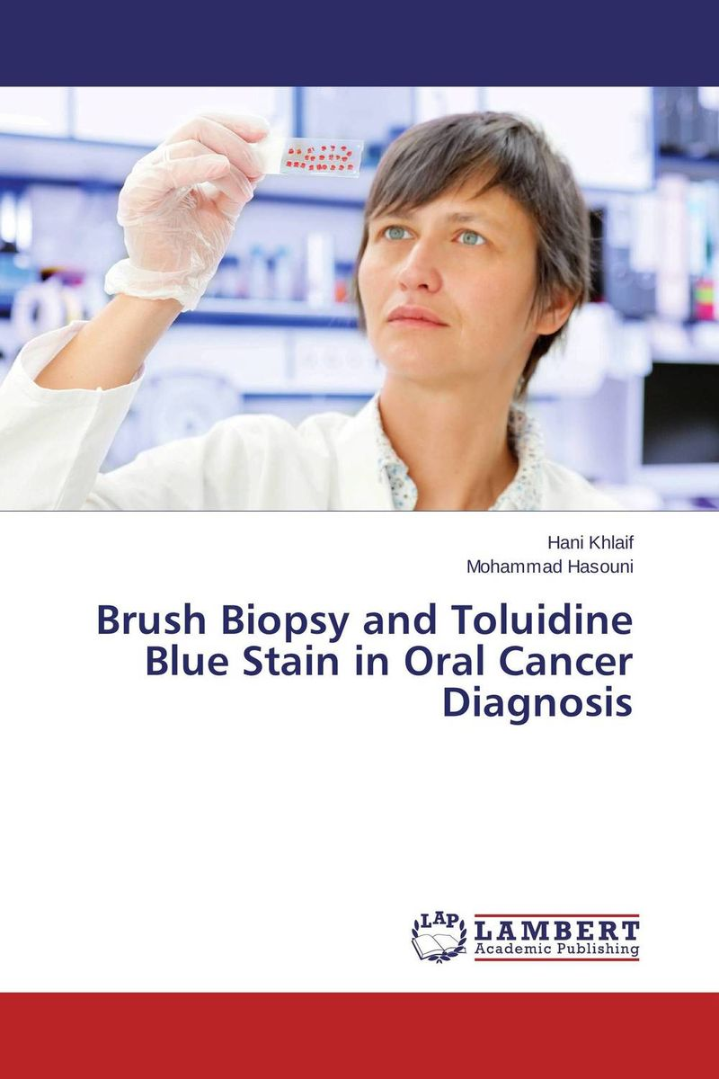 Brush Biopsy and Toluidine Blue Stain in Oral Cancer Diagnosis late stage diagnosis of cervical cancer