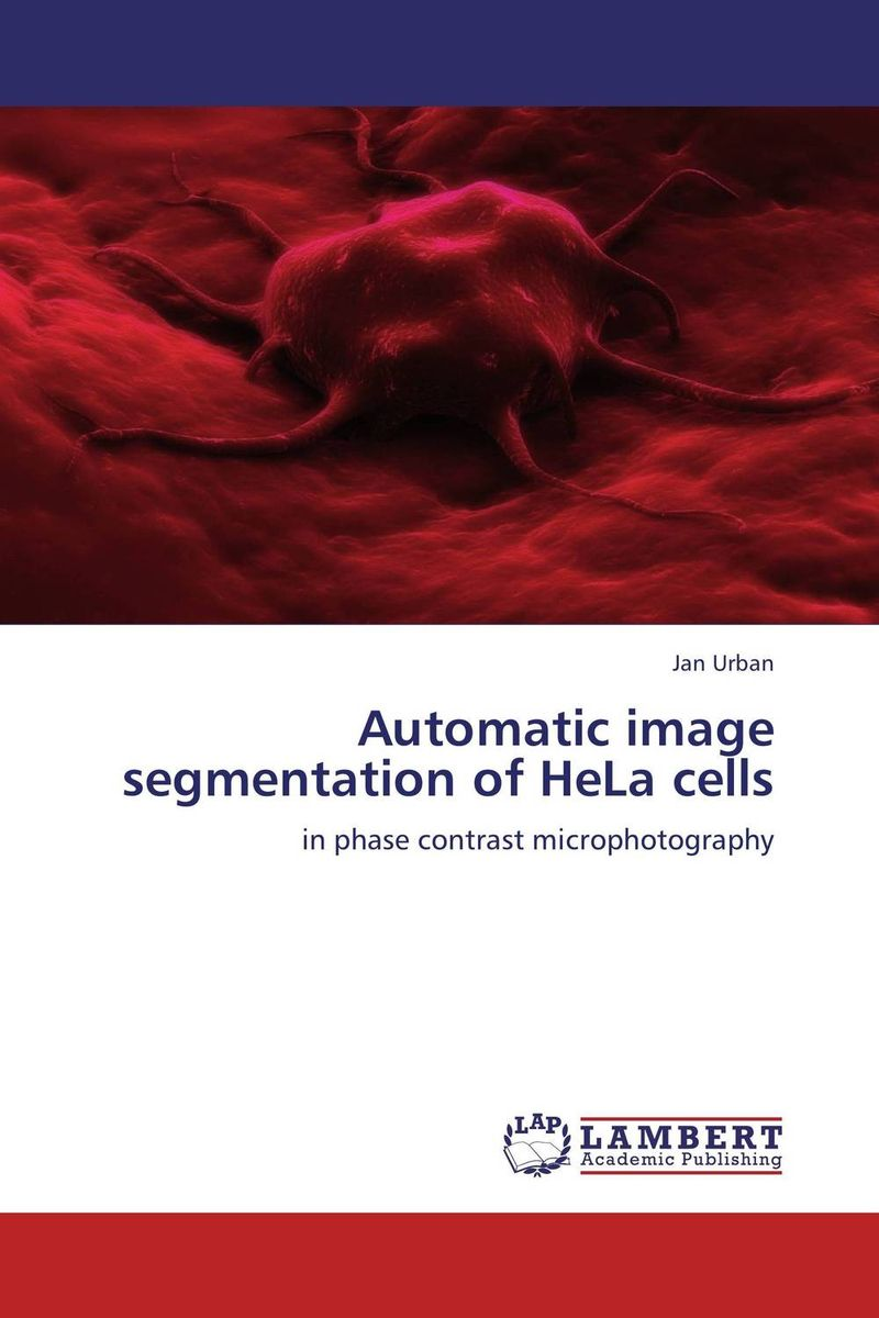 Automatic image segmentation of HeLa cells new approaches for image retrieval