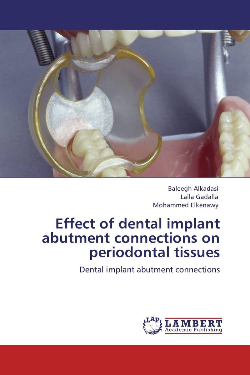 Effect of dental implant abutment connections on periodontal tissues attachments retaining implant overdentures