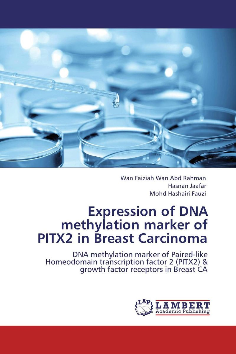 Expression of DNA methylation marker of PITX2 in Breast Carcinoma arvinder pal singh batra jeewandeep kaur and anil kumar pandey factors associated with breast cancer in amritsar region
