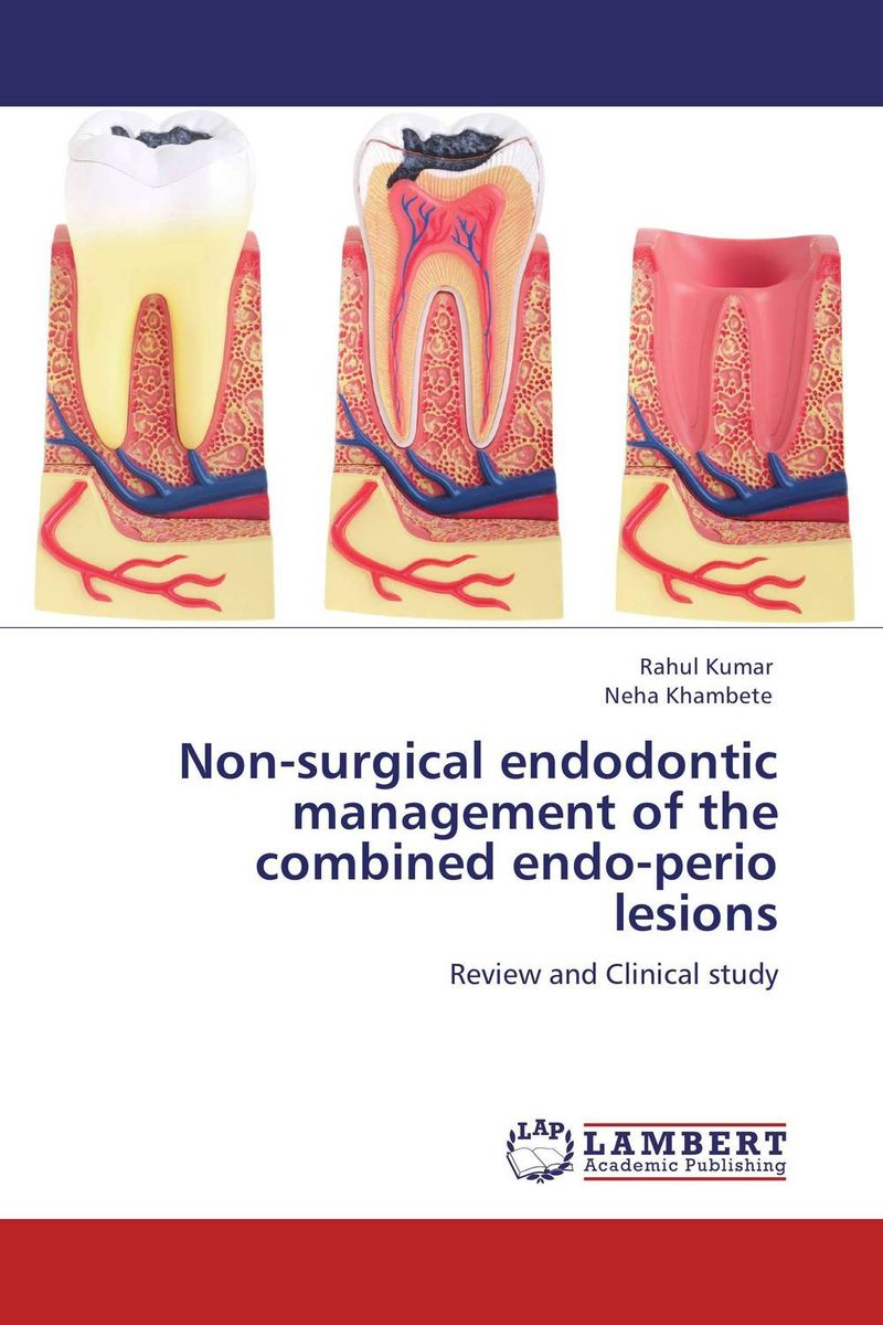 Non-surgical endodontic management of the combined endo-perio lesions andres kanner depression in neurologic disorders diagnosis and management