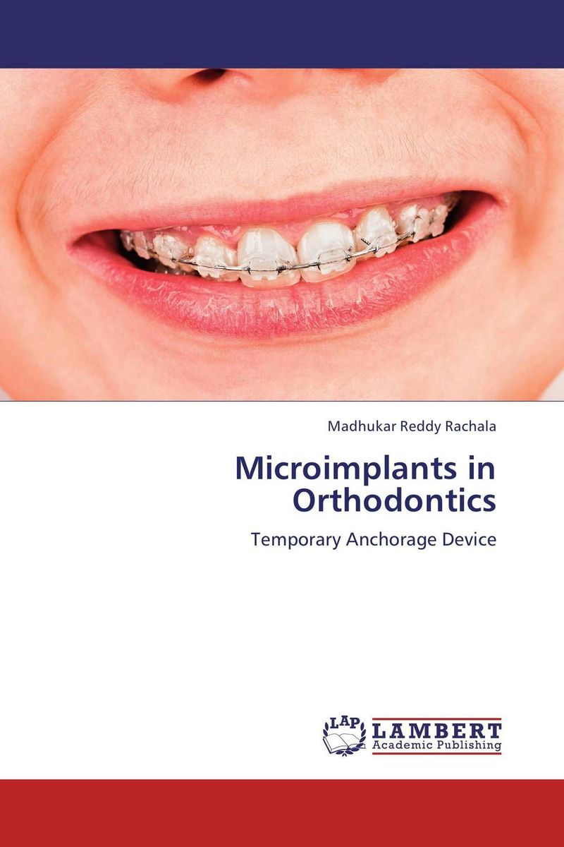 Microimplants in Orthodontics scubapro anchorage trilaminate drysuit