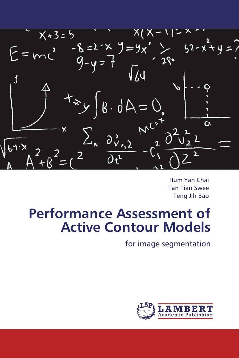 Performance Assessment of Active Contour Models 12385 cmam vertebra02 human cervical vertebral column deluxe skeleton model medical science teaching anatomical models