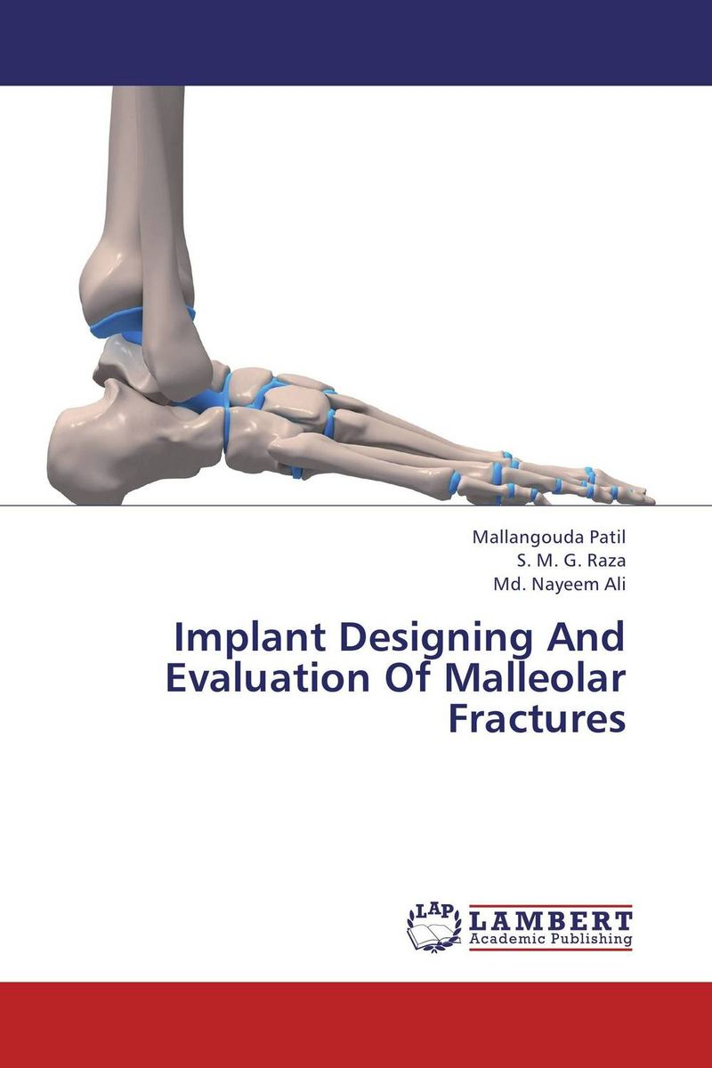 Implant Designing And Evaluation Of Malleolar Fractures the role of evaluation as a mechanism for advancing principal practice