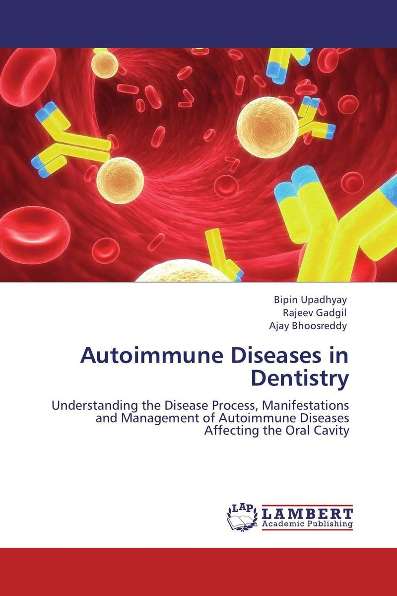 Autoimmune Diseases in Dentistry j rotstein rothstein rheumatology immunosuppression systemic lupus erythematosus – annual review