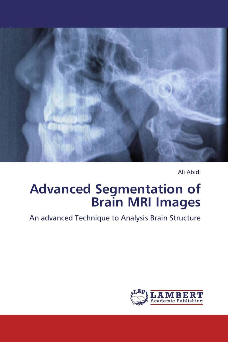 Advanced Segmentation of Brain MRI Images atlas of the developing mouse brain at e17 5 p0 and p6