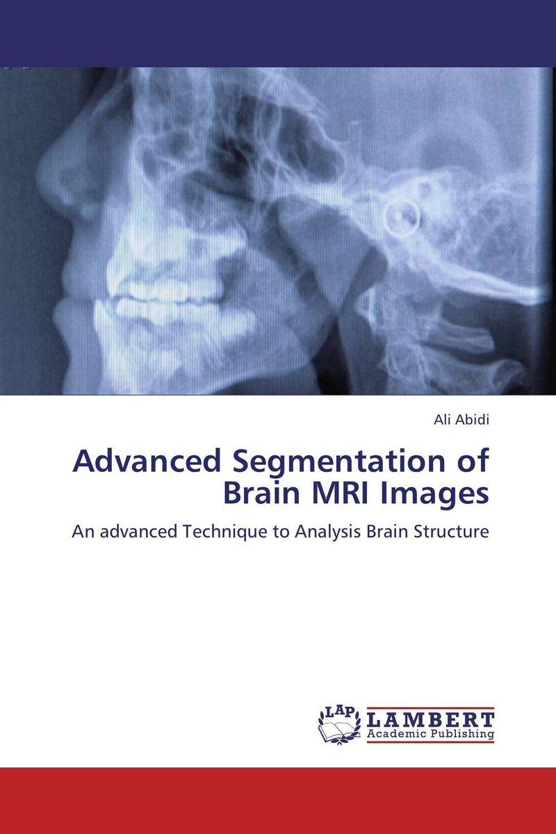 купить Advanced Segmentation of Brain MRI Images недорого