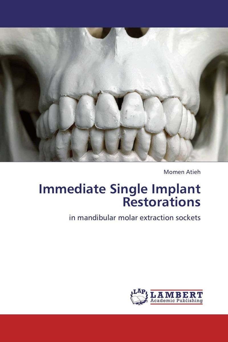 Immediate Single Implant Restorations