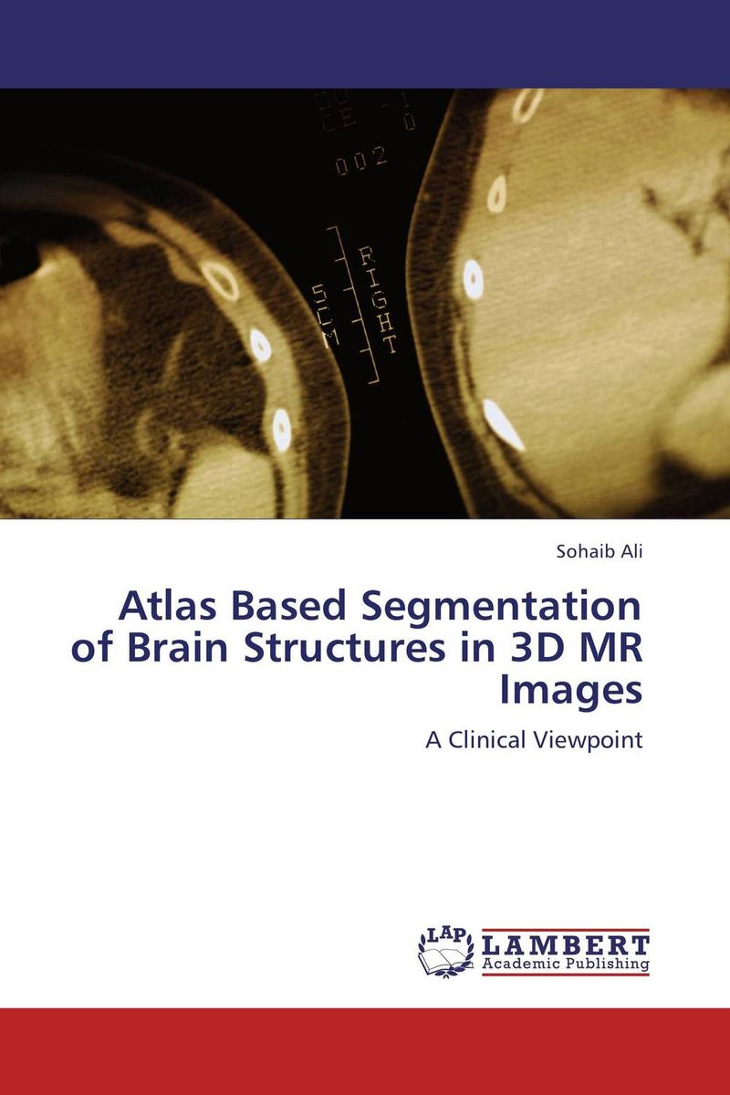 Atlas Based Segmentation of Brain Structures in 3D MR Images clustering and optimization based image segmentation techniques