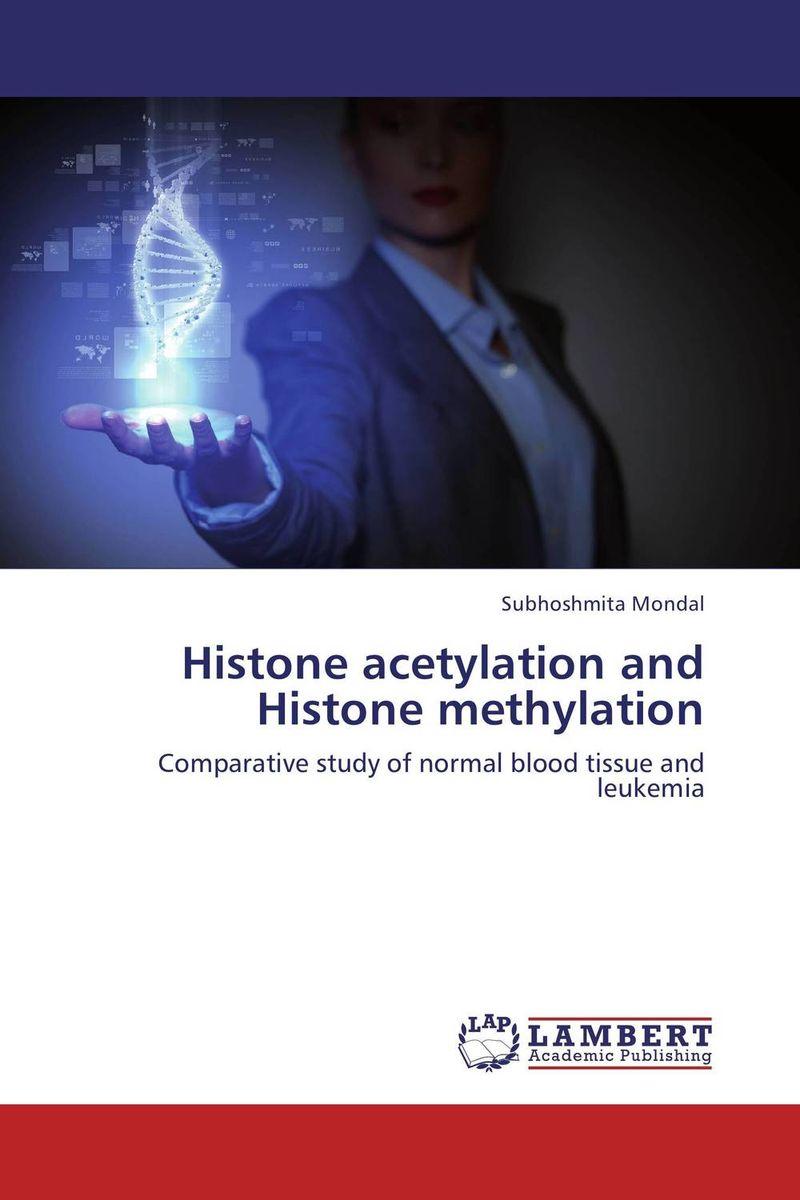 Histone acetylation and Histone methylation found in brooklyn