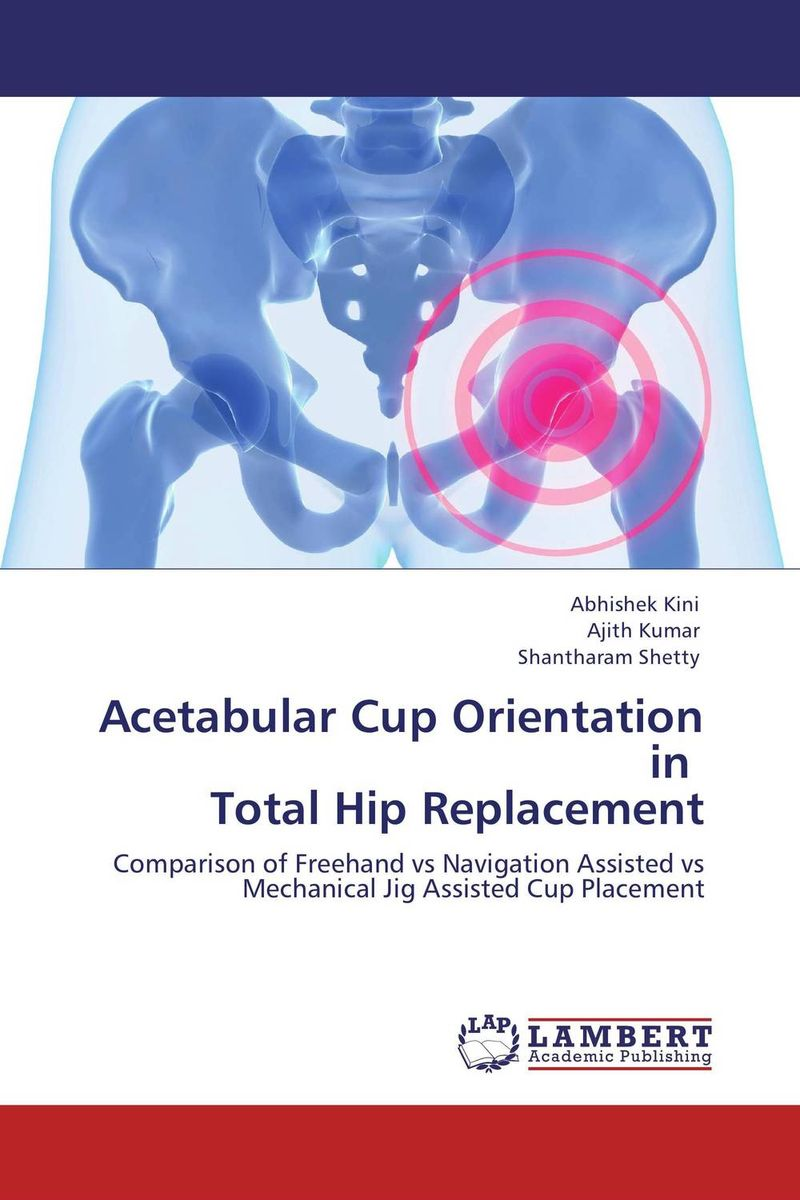 Acetabular Cup Orientation in   Total Hip Replacement