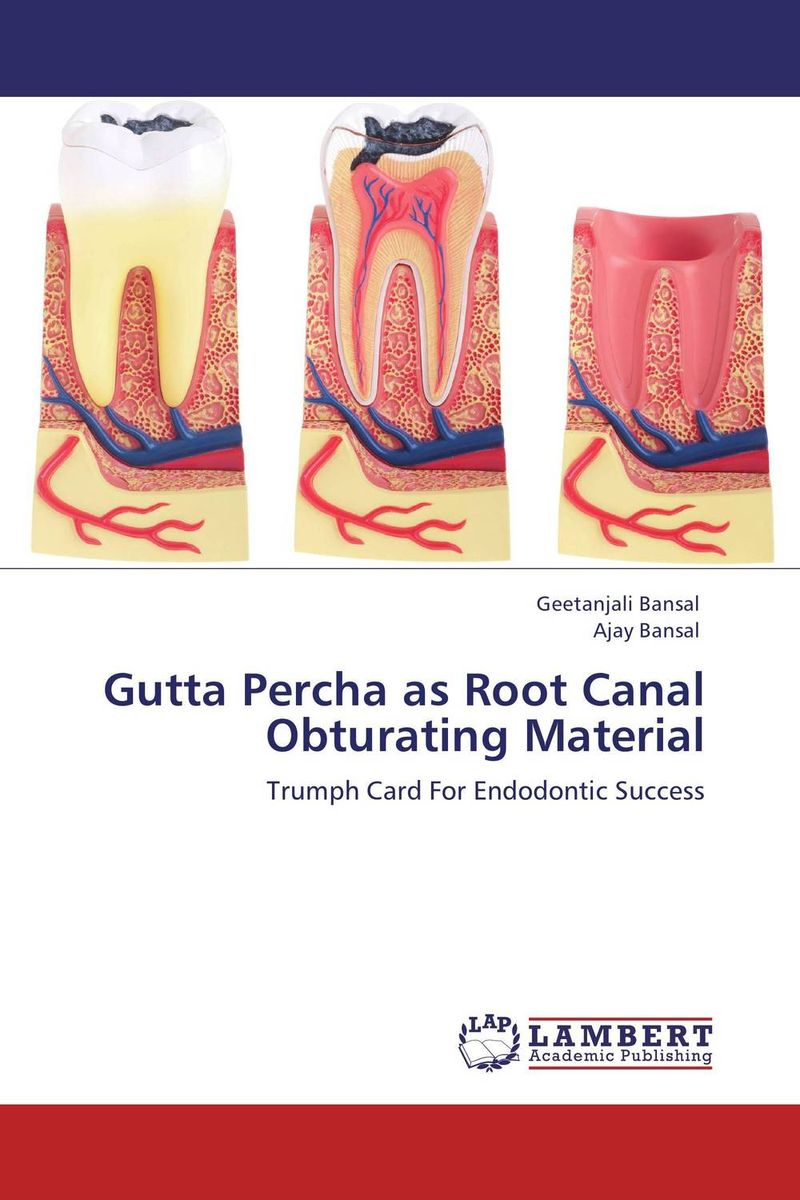 Gutta Percha as Root Canal Obturating Material obturation techniques
