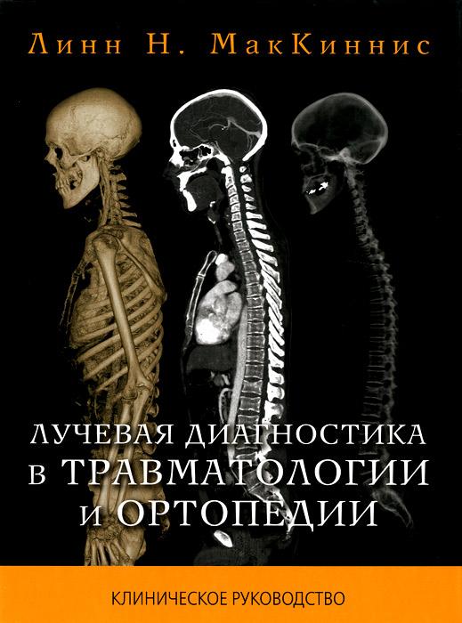 Линн Н. МакКиннис Лучевая диагностика в травматологии и ортопедии . Клиническое руководство линн грэхем чувствительная особа
