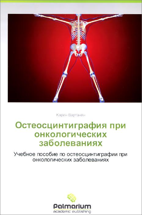 Остеосцинтиграфия при онкологических заболеваниях. Учебное пособие