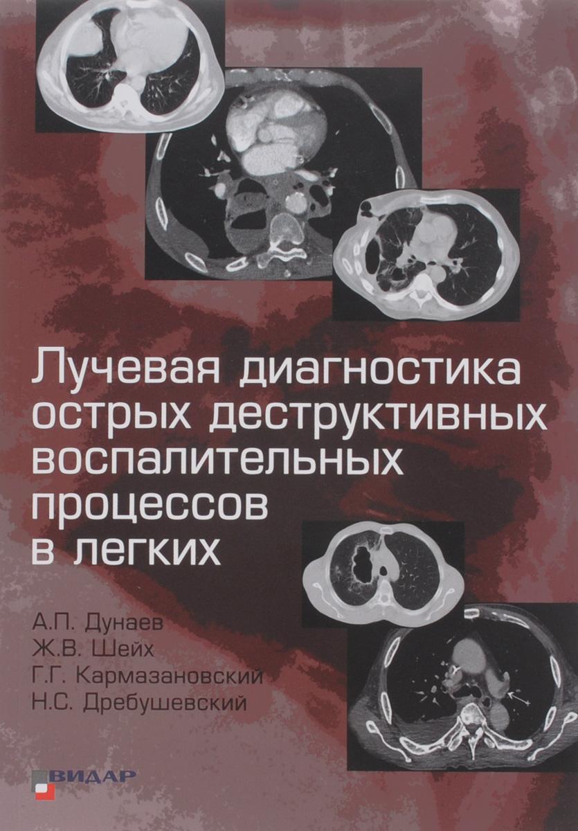 Лучевая диагностика острых деструктивных воспалительных процессов в легких. А. П. Дунаев, Ж. В. Шейх, Г. Г. Кармазановский, Н. С. Дребушевский