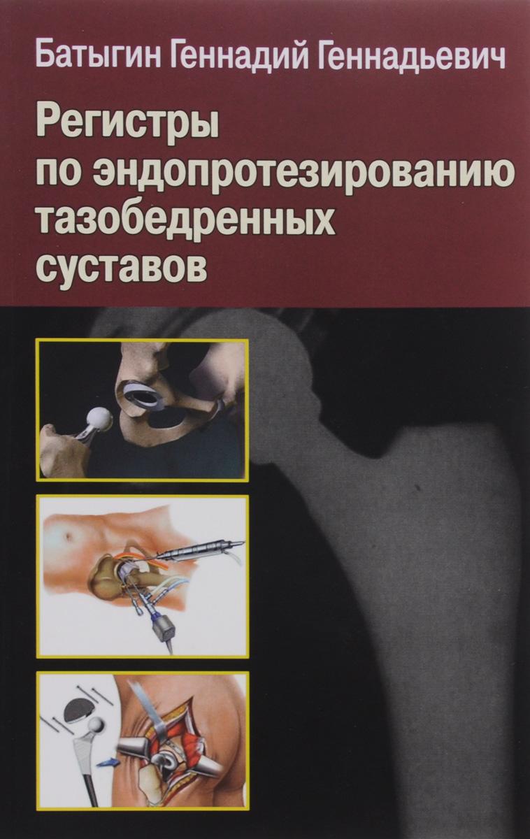 Регистры по эндопротезированию тазобедренных суставов. Г. Г. Батыгин