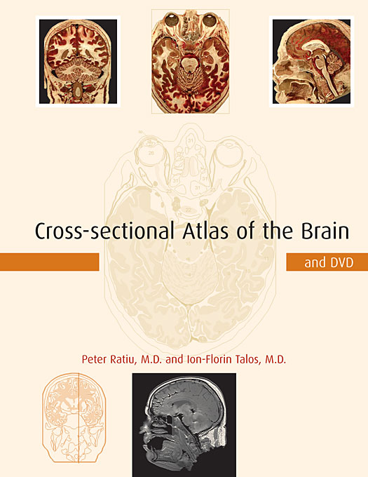 Cross–sectional Atlas of the Human Brain +DVD pantera pantera reinventing hell the best of pantera cd dvd