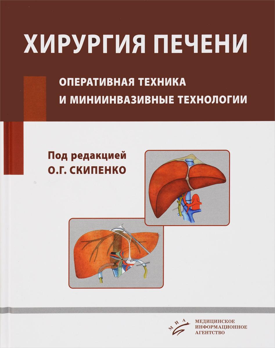 Хирургия печени. Оперативная техника и миниинвазивные технологии. Руководство для врачей