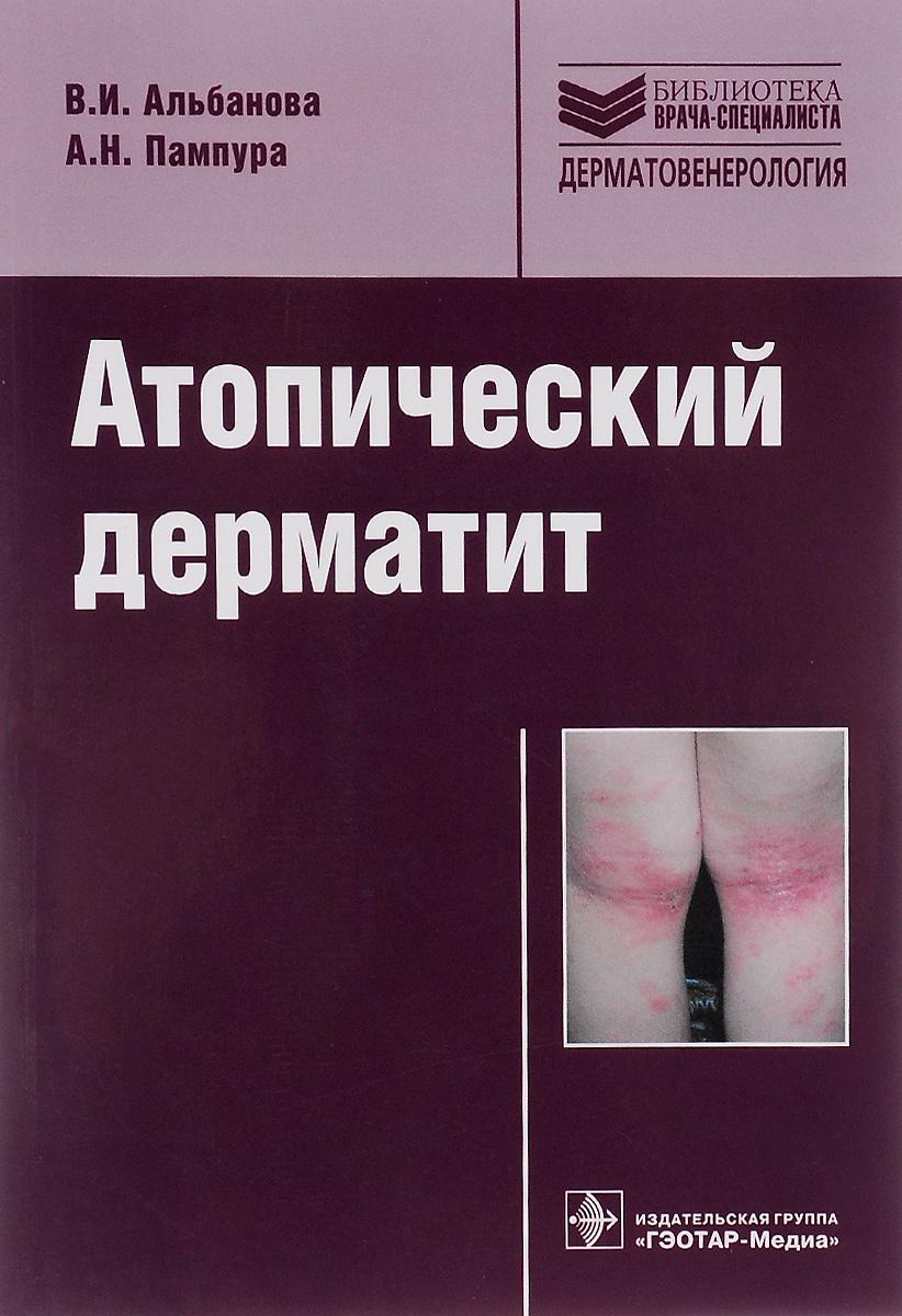 Атопический дерматит. Учебное пособие. В. И. Альбанова, А. Н. Пампура
